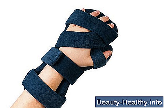 Wrist Splints vs håndled-hånd-finger Orthotics