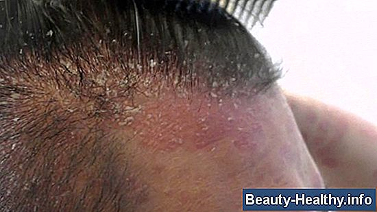Burning Scalp Syndrome