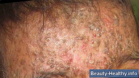 Impetigo Vs. Ringorm