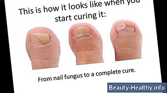 The Best Toenail Fungus Cures