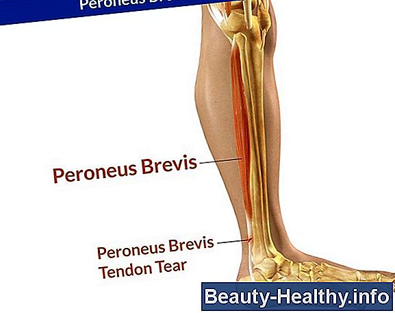 Flexor Hallucis Longus Tendon Pain Relief