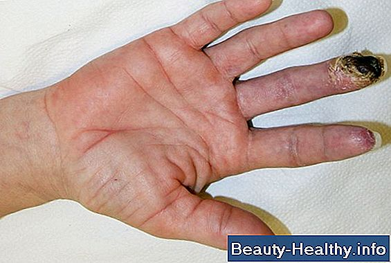 Trigger Thumb og Carpal Tunnel Syndrome Connection