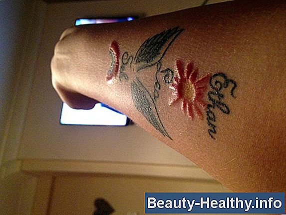 Tattoo Ink Allergy Treatment